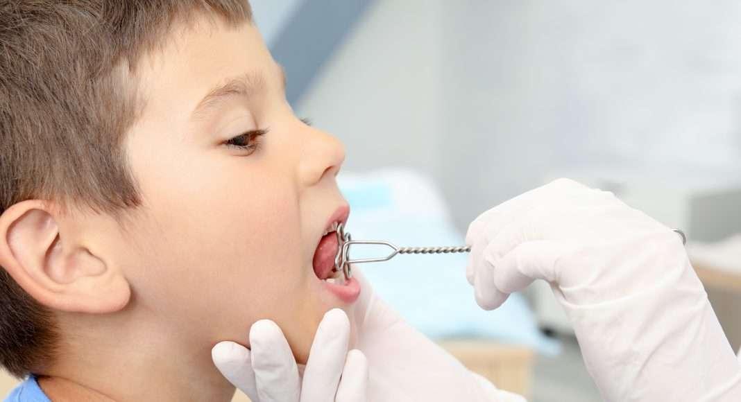Perché l'ortodontista e il logopedista sono due figure complementari? Quali sono i benefici per il paziente? - My FACE Expert
