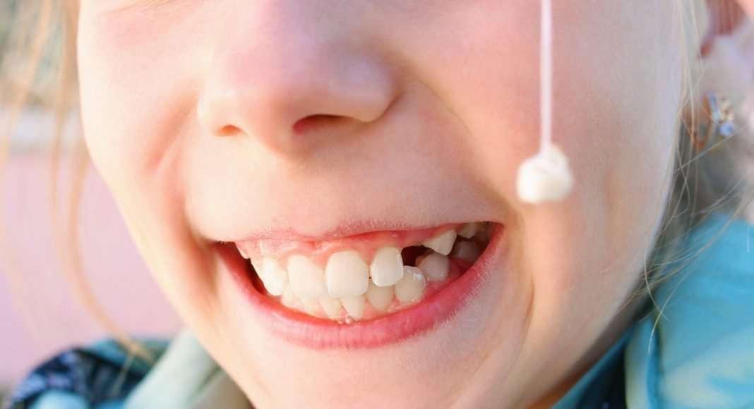 Denti sporgenti: quali sono le cause e i rimedi?