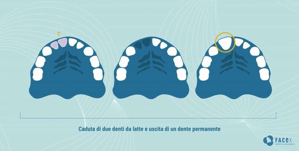 Caduta di un dente da latte e ritardo nell'uscita del dente permanente