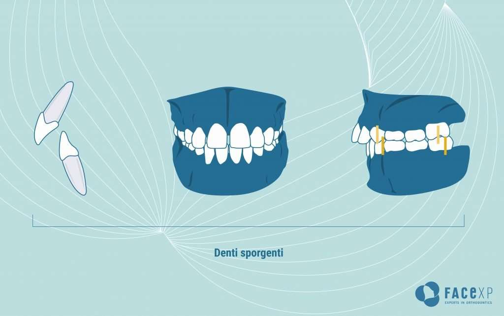 Denti sporgenti