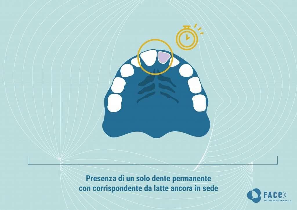 Presenza di un solo dente permanente con il corrispondente da latte ancora in sede